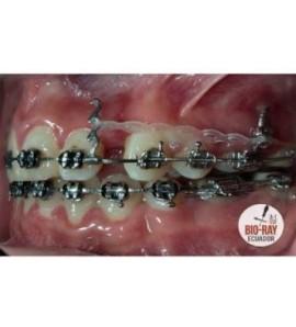 Ganci Ortodontici a Triplo Uncino da Crimpare